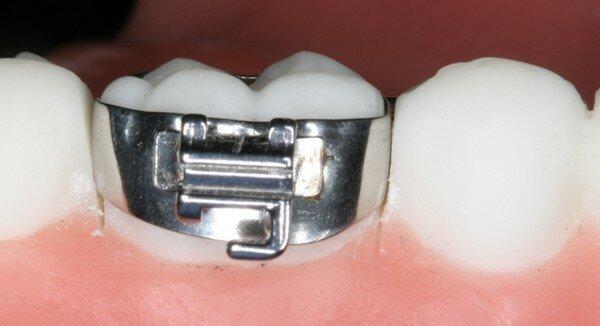 Можно ли ставить брекеты на коронки, пломбы и импланты – подготовка к ортодонтическому лечению