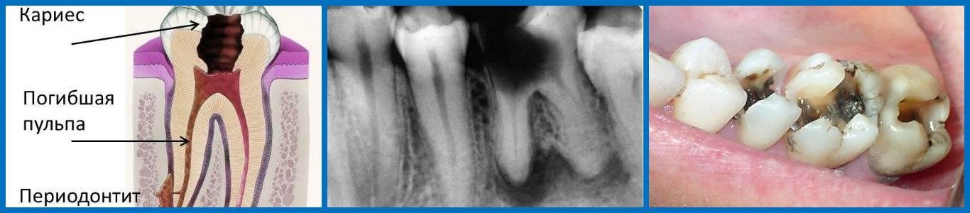 Хронический гранулирующий периодонтит молочных зубов