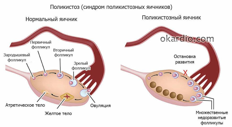 Узи при преждевременное истощение яичников