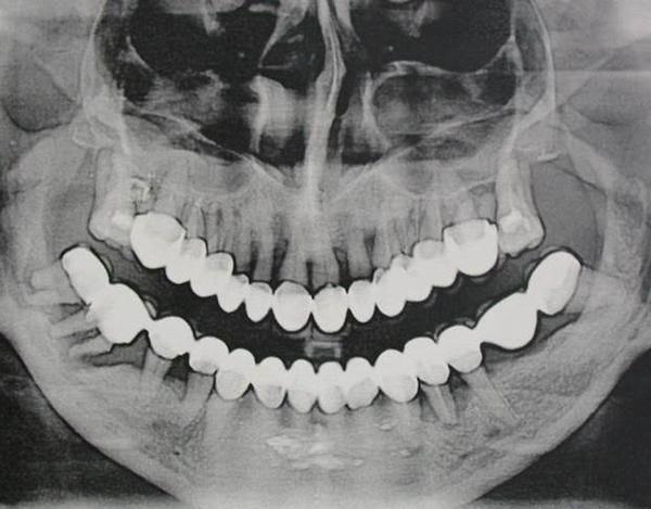 Киста челюсти: чем опасна и нужна ли операция?