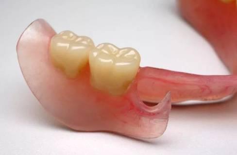 Коррекция съемных зубных протезов