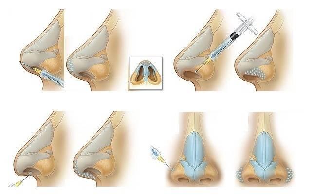 Ринопластика без операции – безоперационная коррекция и контурная пластика носа