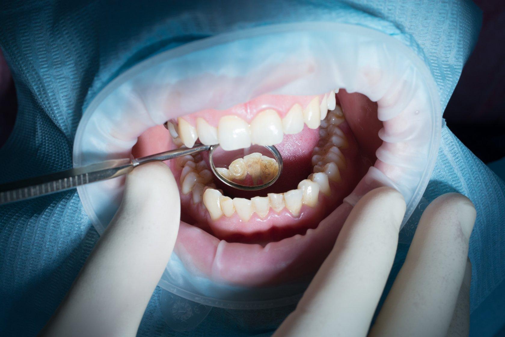 Лечение кариеса зубов: этапы и фото