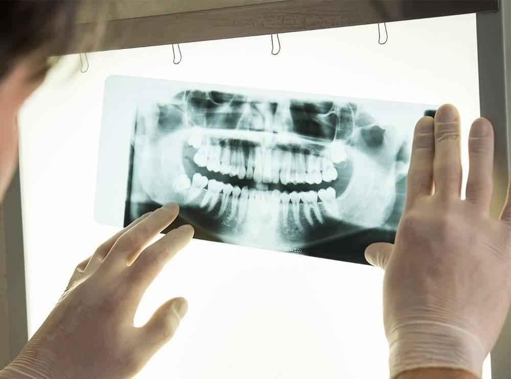Способы и методика проведения рентгена зубов