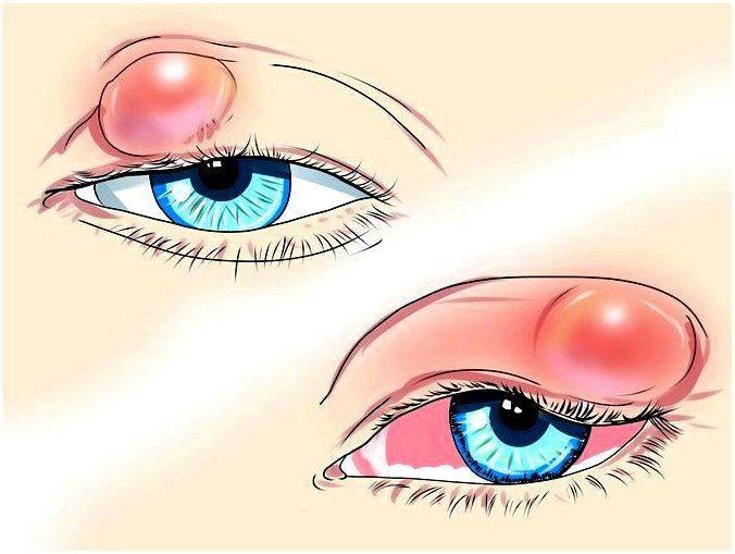 Опухоль на веке глаза: причины и виды