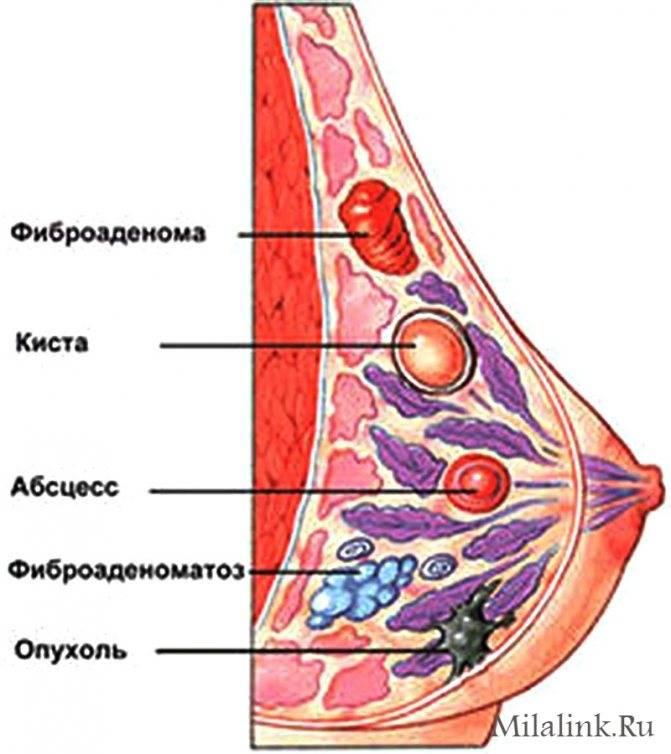 Фиброаденома молочной железы: виды, симптомы, способы лечения