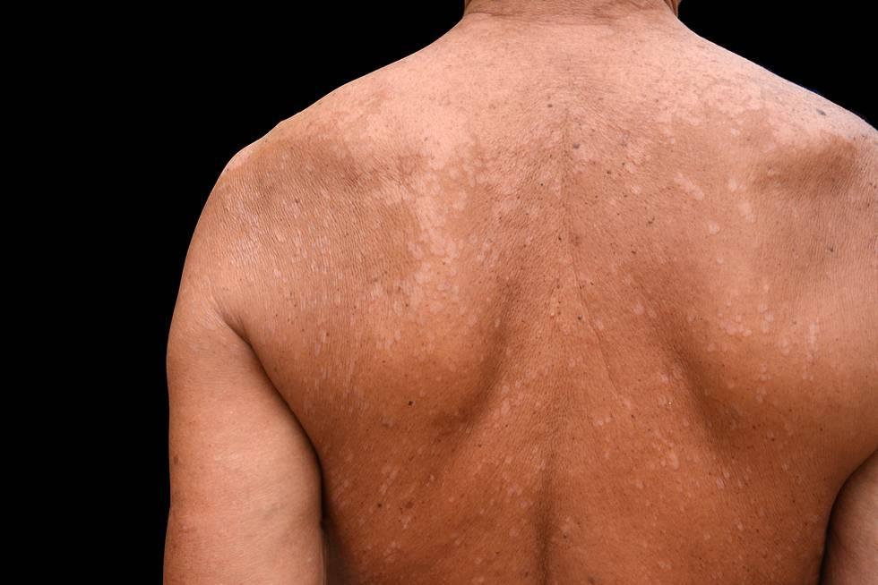 Белый лишай у человека — симптомы, лечение, фото с описанием причин
