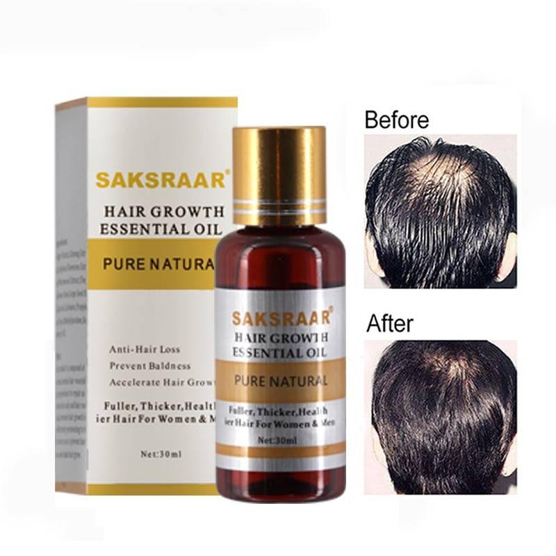 Лечение выпадения волос таблетками