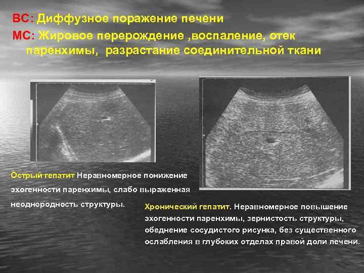 Диффузные изменения поджелудочной железы