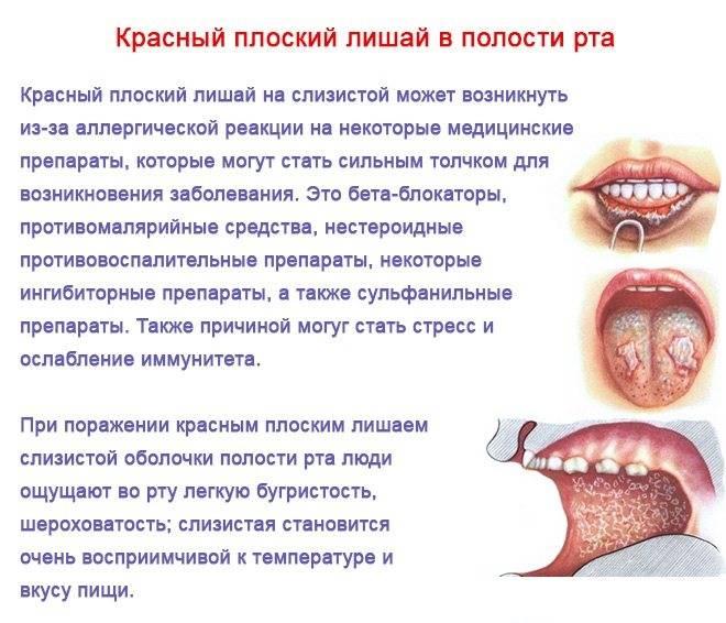Клиника и своевременная диагностика рака слизистой оболочки полости рта