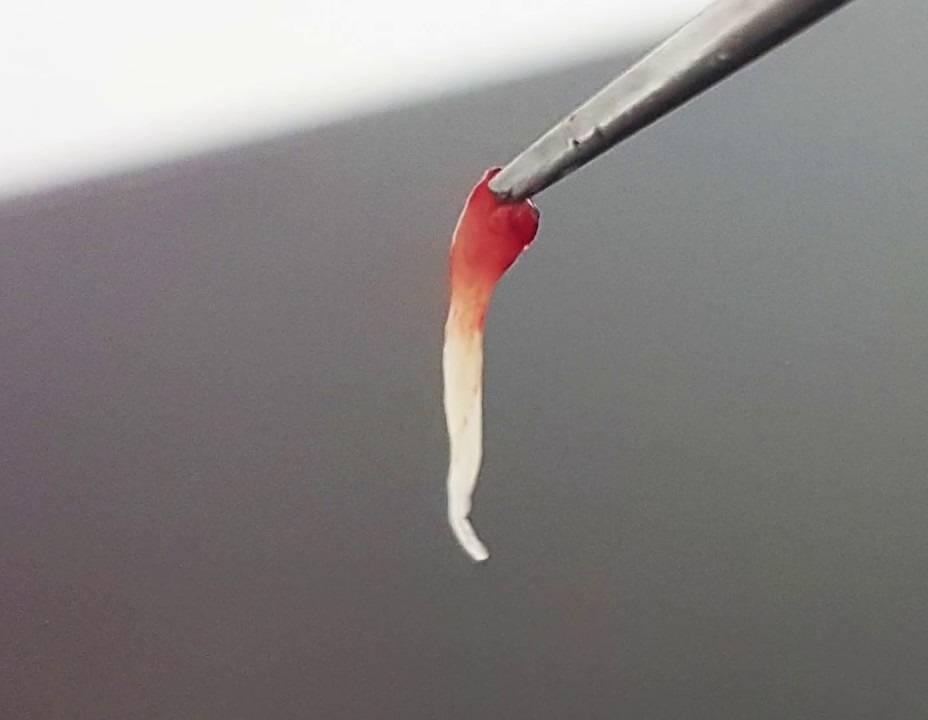 Как убить нерв в зубе, если нет возможности попасть к врачу