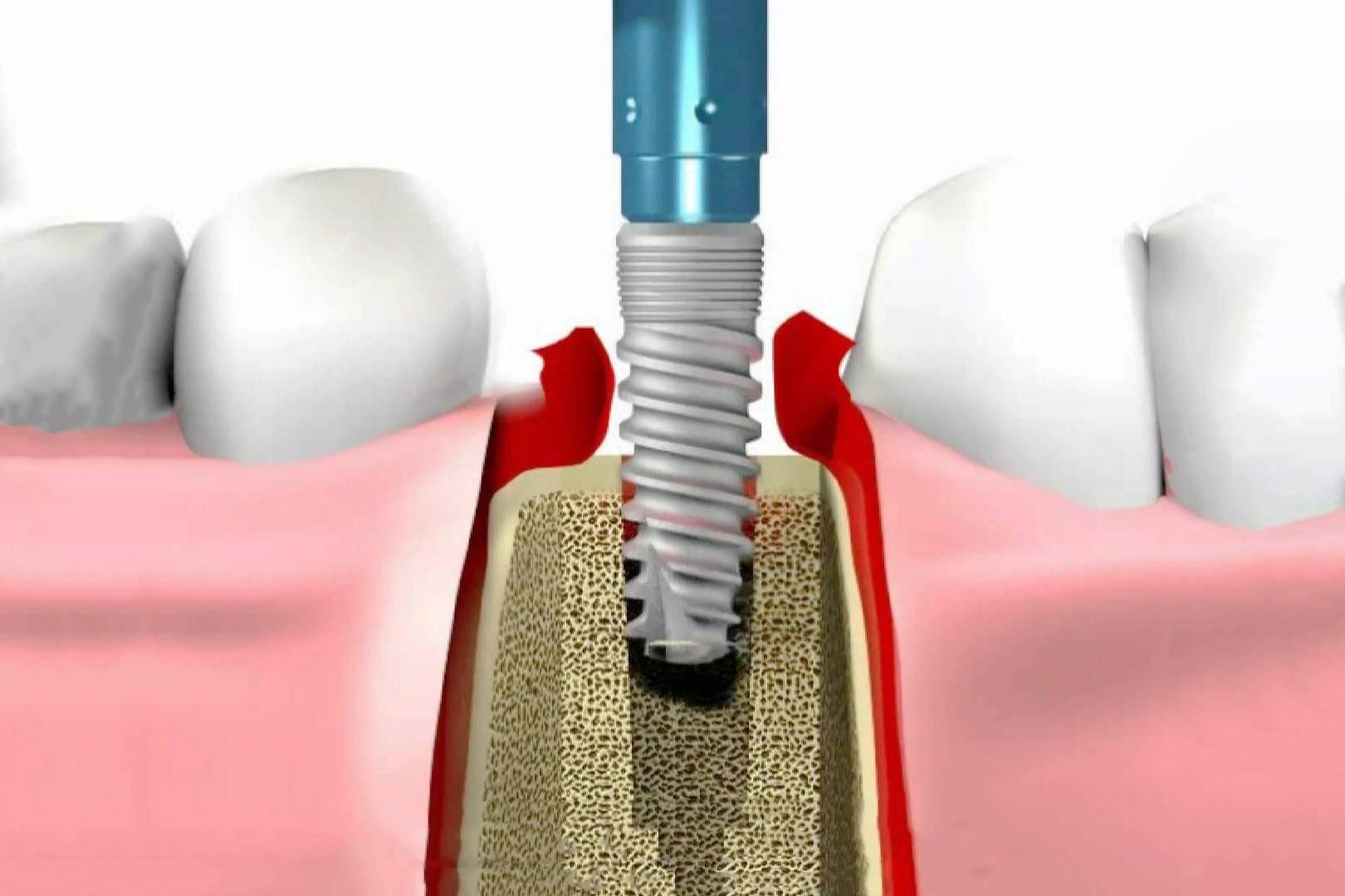 Установка зубных имплантов: противопоказания, возрастные ограничения и возможные осложнения имплантации