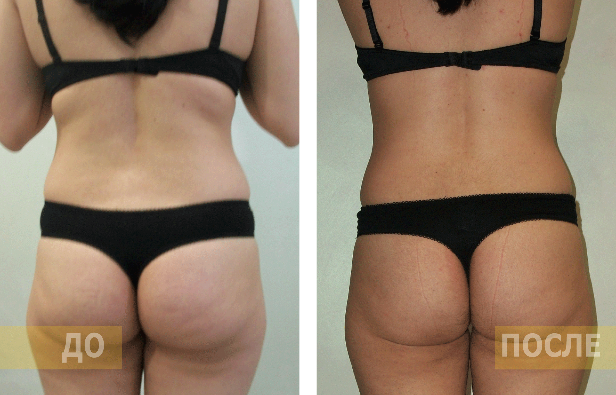 Кавитация — отзывы, фото до и после