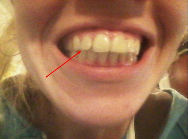 Шокирующая информация: почему после брекетов зубы разъехались и стали кривыми