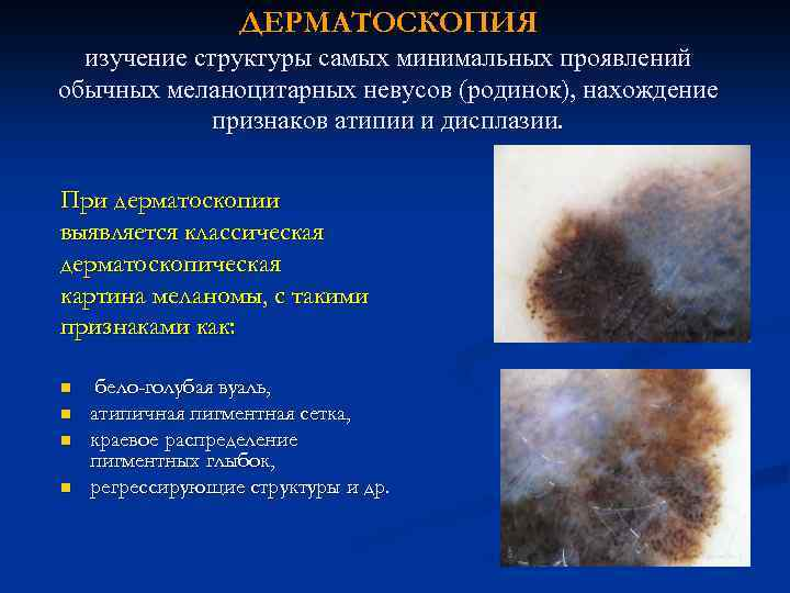 Опухоли: доброкачественные, предраковые излокачественные