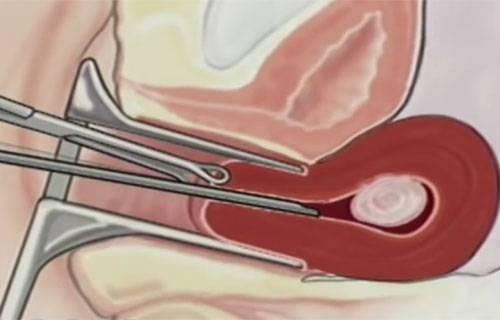 Когда назначают и как проводят гистероскопию матки