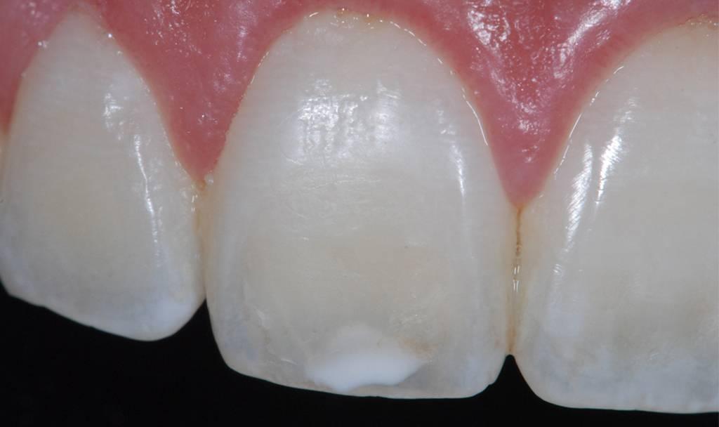 Почему появляется кариес на передних зубах и как его лечат