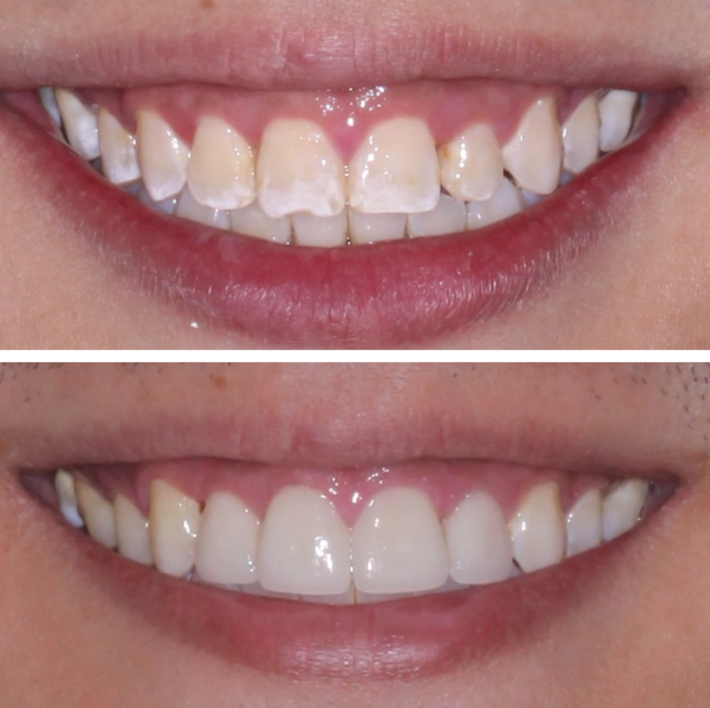 Можно ли восстановить нарощенный зуб