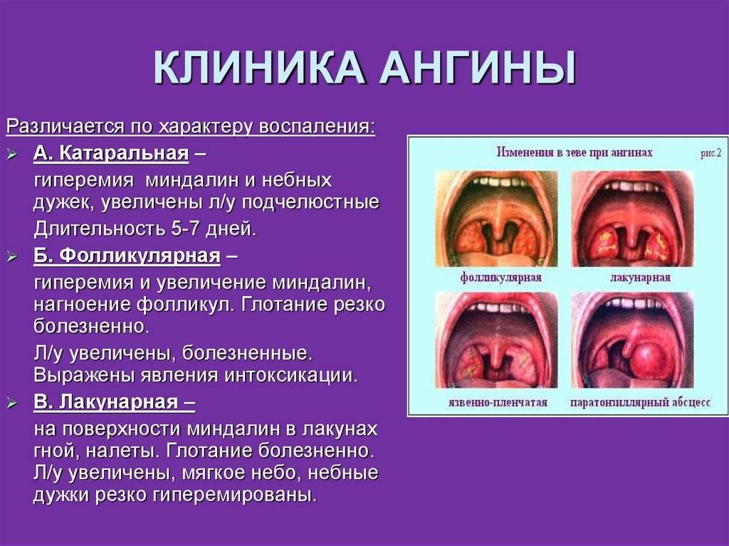Как лечить на горле язвы