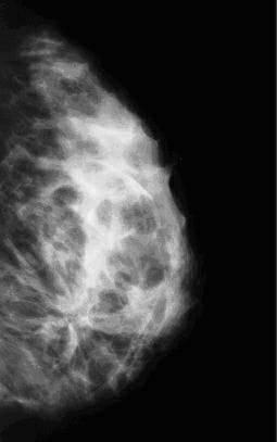 Причины, виды, признаки, симптомы, диагностика и лечение инволютивных изменений молочных желез