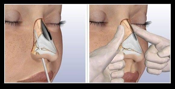 Остеотомия носа что это такое? фото до и после +видео закрытым способом