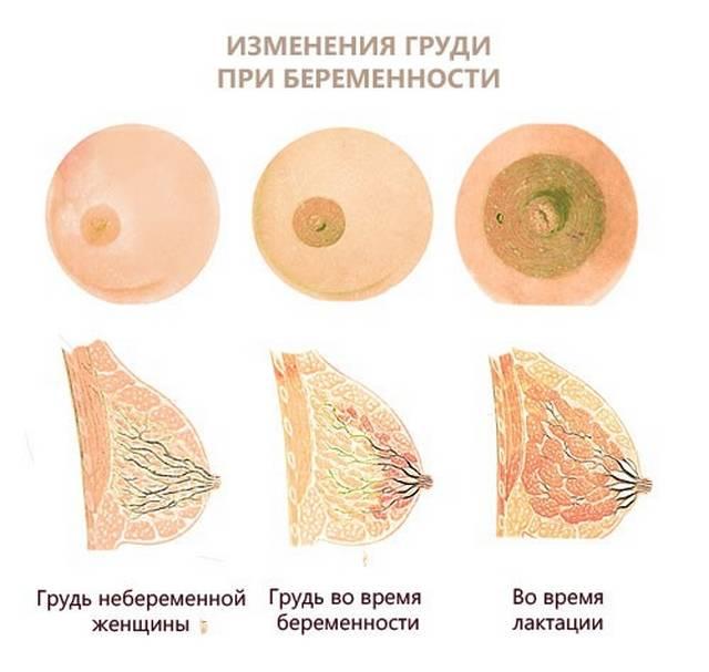 Выделение молозива из молочных желез при надавливании