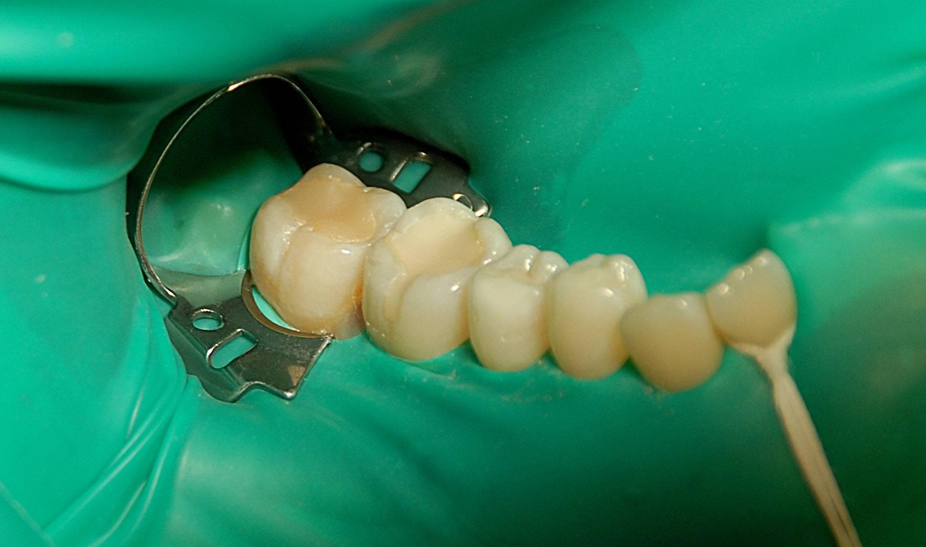 Как применяется коффердам в стоматологии и нужен ли он?