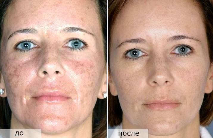 Эффективные процедуры от пигментации в косметическом салоне