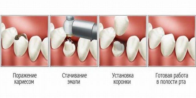Как восстановить отколотый зуб
