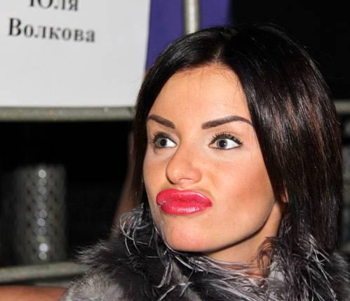 Юлия волкова делала немало пластических операций, и не все они прошли удачно