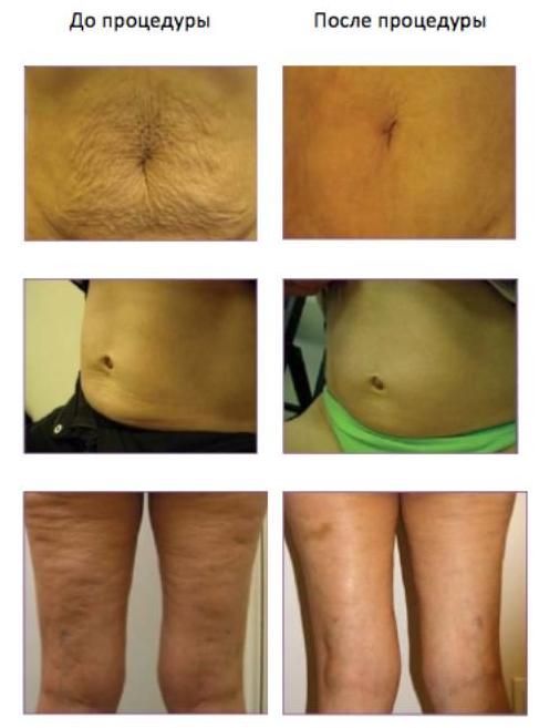 Rf-лифтинг тела: особенности процедуры