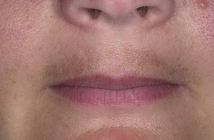 Белые точки на губах под кожей: фото, причины, лечение