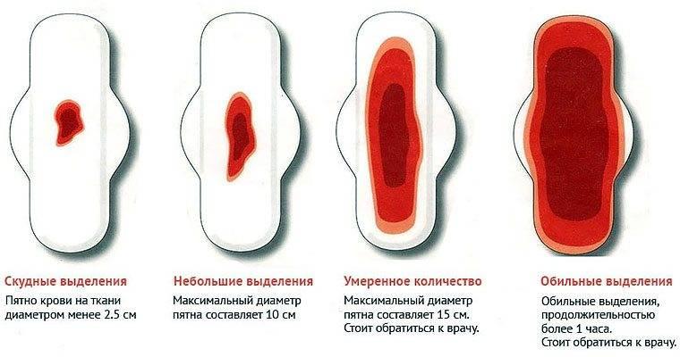 Обильные месячные или маточное кровотечение: как определить самостоятельно и стоит ли лечить