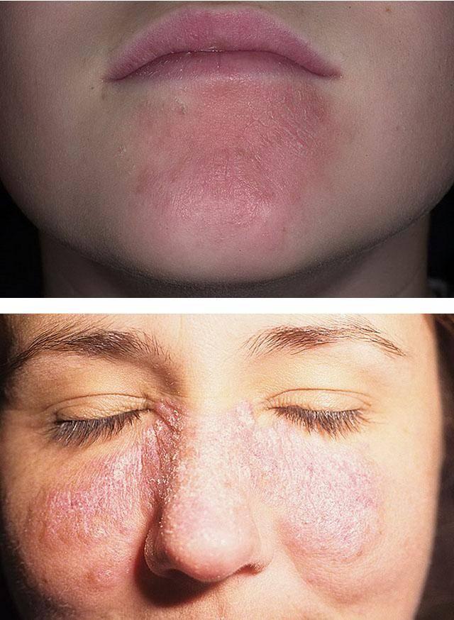 Шелушение кожи на подбородке
