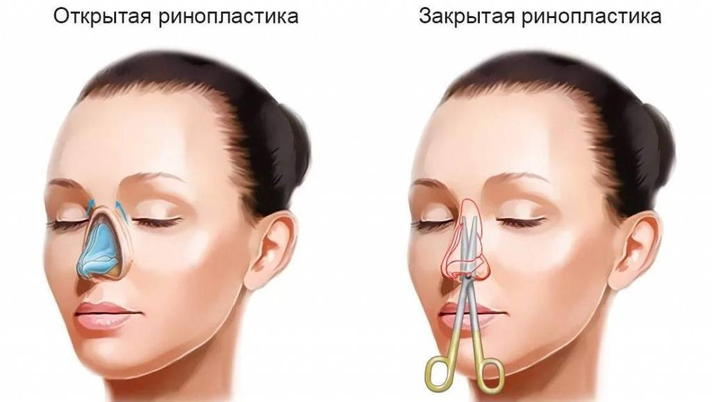 Уход за носом после ринопластики: перечень ограничений на период реабилитации