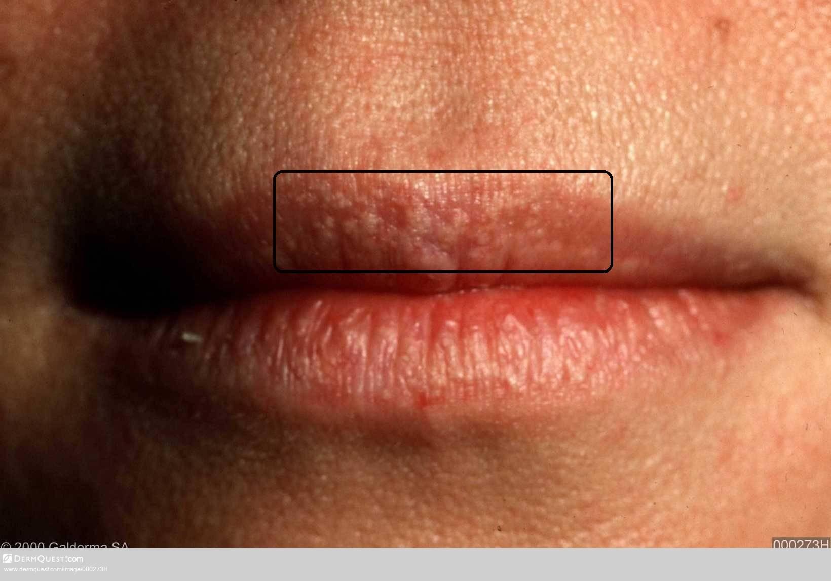Как избавиться от молочницы на губах