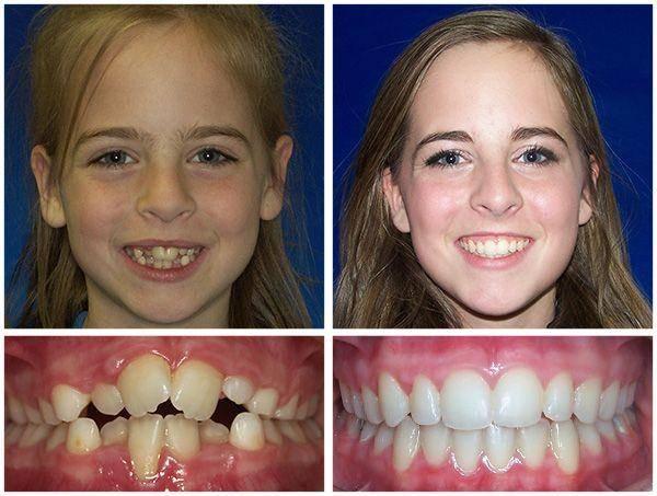 Металлические части смотрятся не эстетично? как выровнять зубы без брекетов