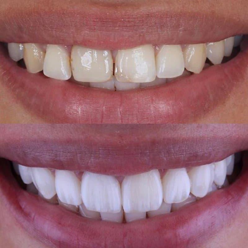 Восстанавливаем эстетику улыбки: можно ли ставить виниры на кривые зубы