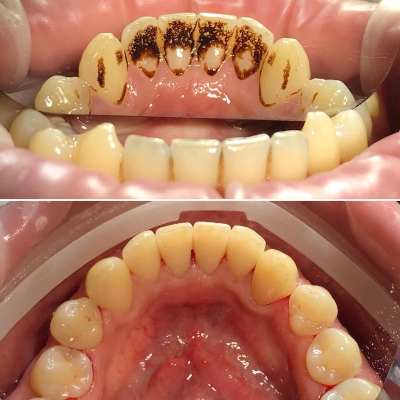 Чистка зубов при беременности
