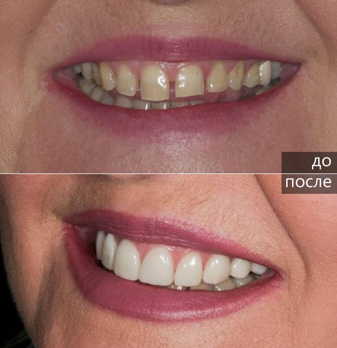 Особенности установки виниров без обточки зубов