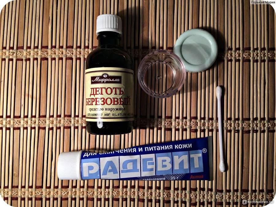 Березовый деготь для кожи: рецепты масок от прыщей, папиллом и бородавок. рецепты препаратов на основе березового дегтя для лечения угрей. умывание дегтярным мылом
