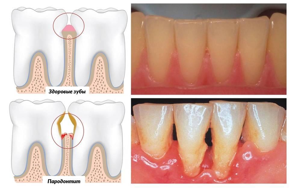 Немеют зубы: причины онемения верхней и нижней челюсти