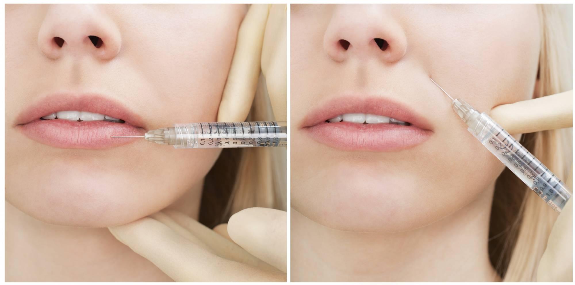 Филлеры в лоб: особенности процедуры и обзор популярных препаратов