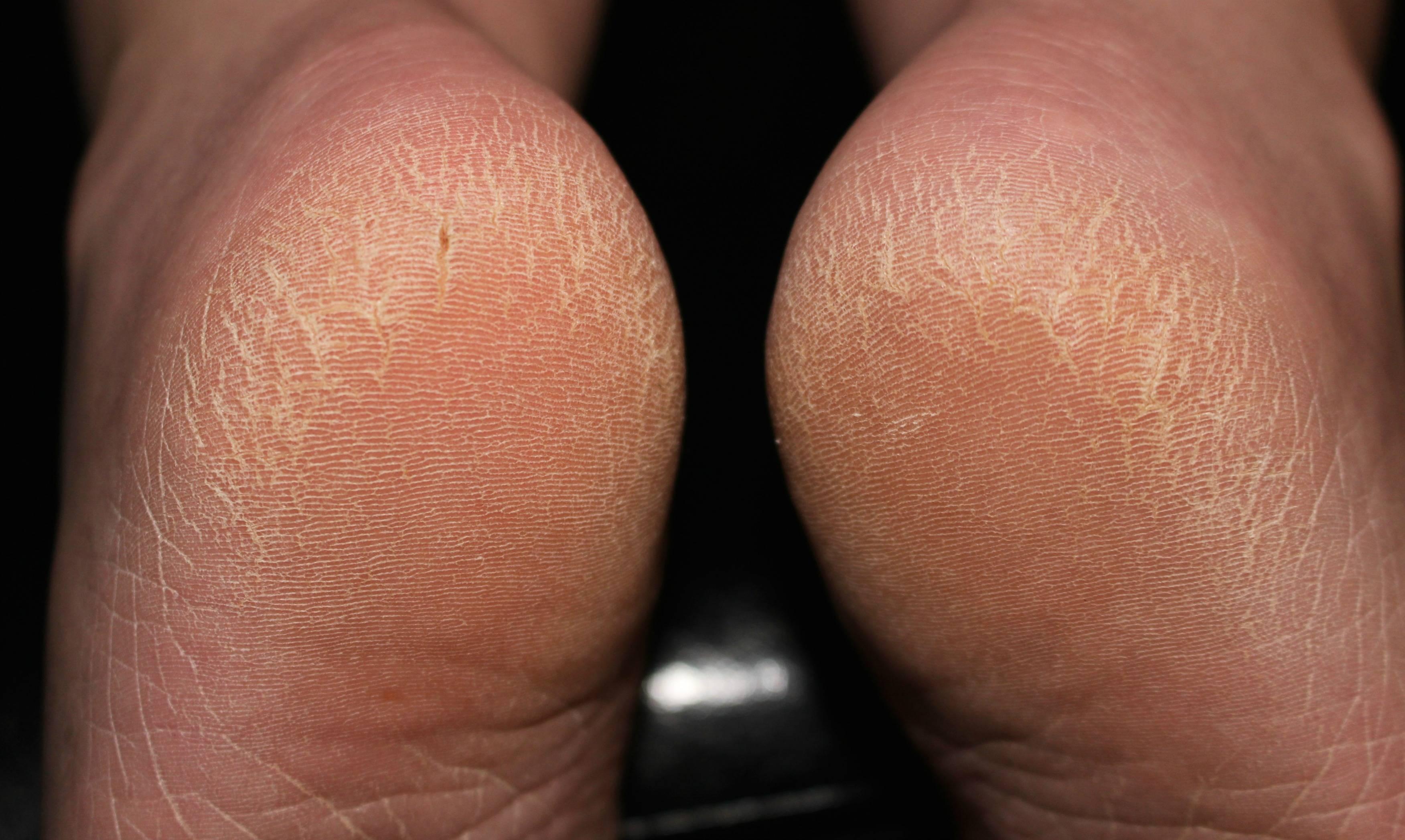 Почему шелушится кожа на стопах ног и отслаивается чешуйками