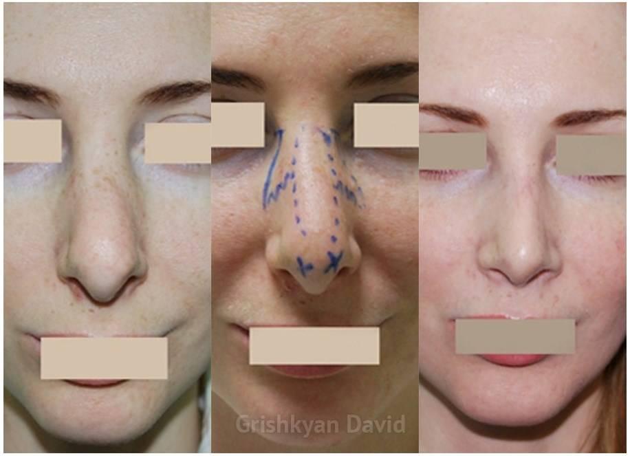 Нос после ринопластики — особенности восстановления и осложнения