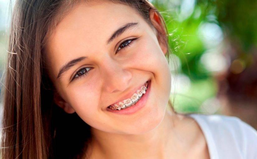 Скобы на зубы: что это такое, в чем особенности и отличия от брекетов
