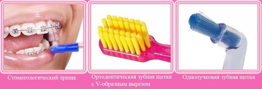Зачем ставят брекеты на зубы взрослым и детям? как ухаживают и снимают?