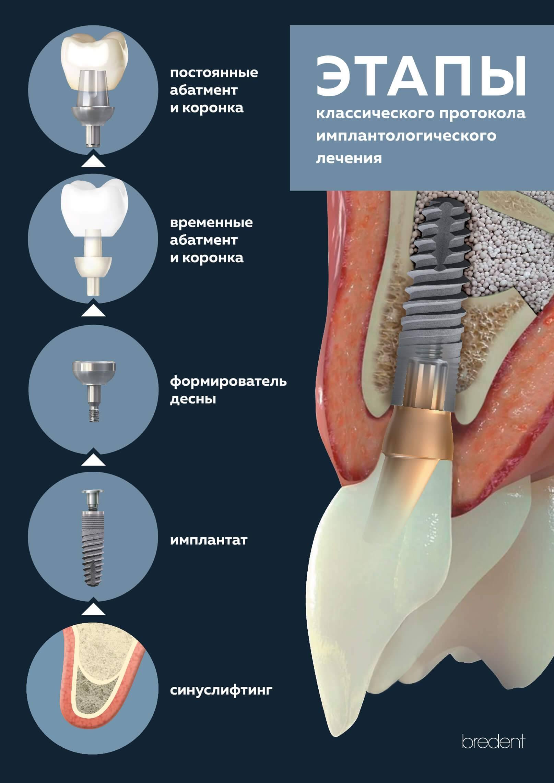 Методы и этапы установки имплантов зуба, показания, противопоказания, длительность операции и сроки приживления