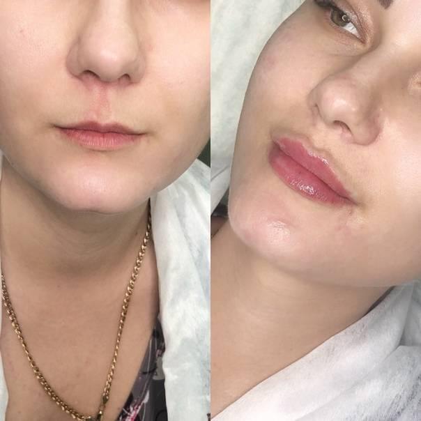 Операция по увеличению губ – стоит ли выбрать хирургический метод?