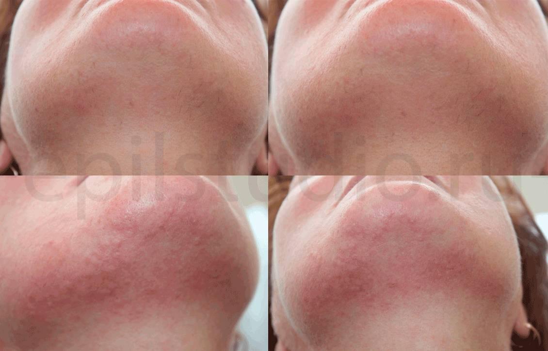 Особенности применения фотоэпиляции на лице — как надолго сделать кожу нежной и гладкой,  отзывы о процедуре